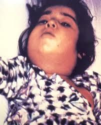 difteria 1